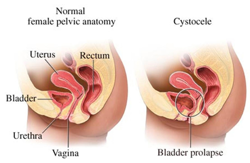 Can I Exercise With Pelvic Organ Prolapse? | Warrior Fit ...